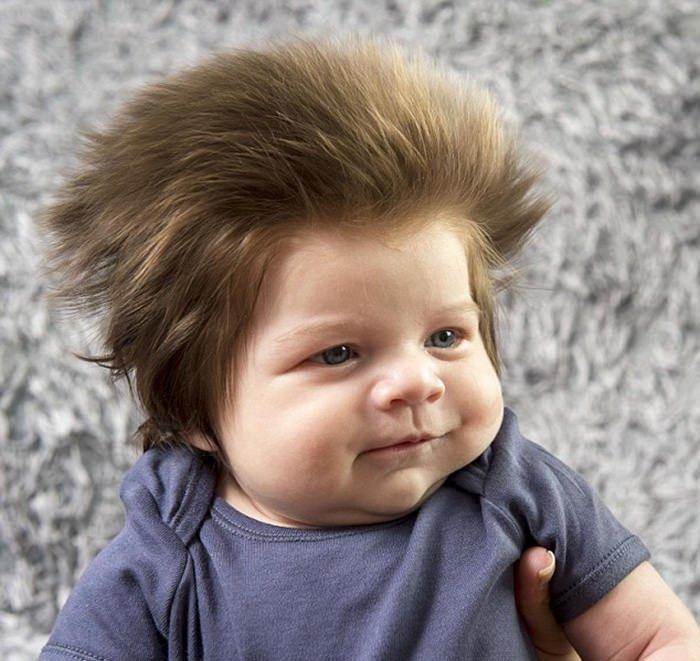 Bebek saç dökülmesine ne iyi gelir, bebeklerde saç dökülmesine doğal çözümler nelerdir ?